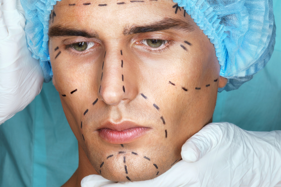 The Truth About Face-Lifts